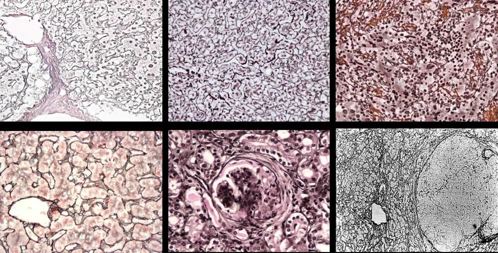 تولید رنگ های پاتولوژی تشخیصی و تحقیقاتی