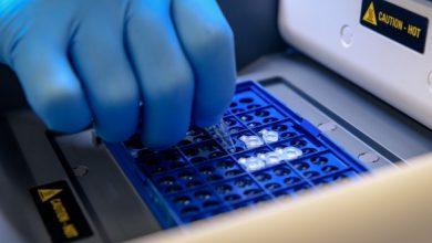 سنتز cDNA از RNA استخراج شده از سلول و بافت