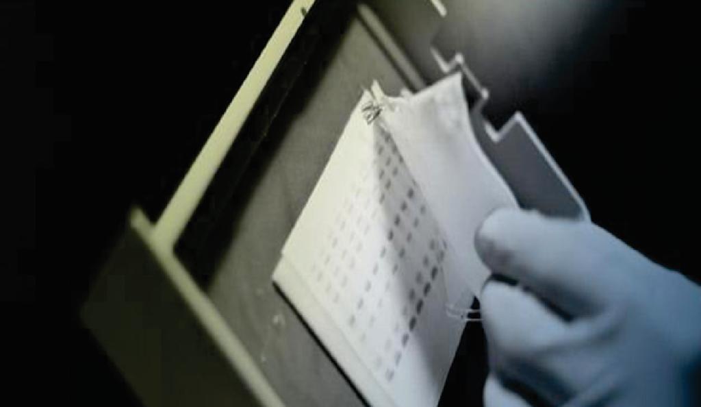 آزمایش الایزا -تست الایزا - تست وسترن بلات - آزمایش وسترن بلات - فلوسیتومتری - ELISA - ژنتیک مولکولی - سیتوژنتیک