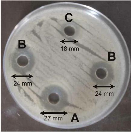 روش دیسک دیفیوژن در تست آنتی بیوگرام