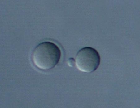 جنین شناسی تخمک گذاری اسپرم IVF اسپرموگرام