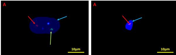کاربرد های تکینک FISH در تحقیقات بالینی نوین