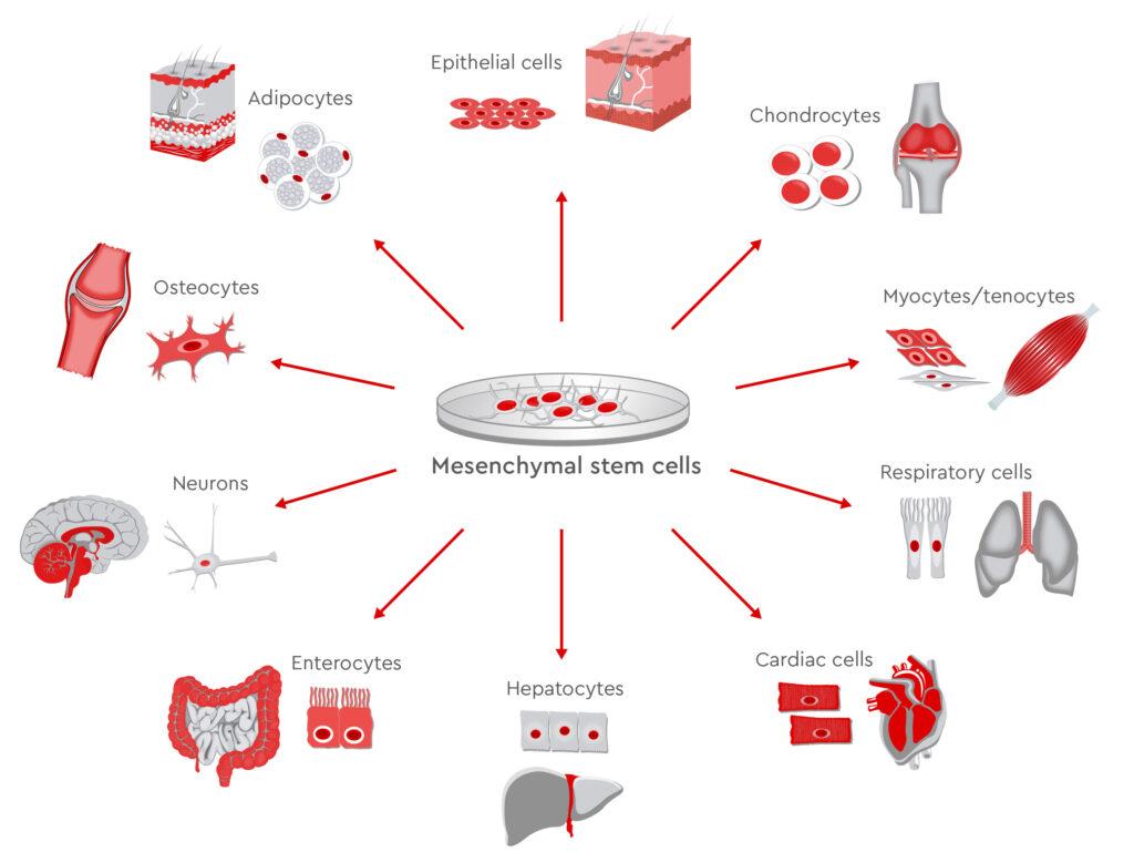 سلول های بنیادی مزانشیمی