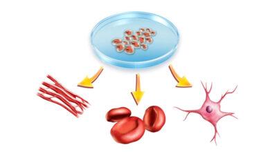 سلول های بنیادی مزانشیمي