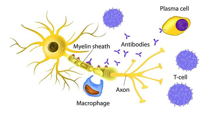 القای مدل بیماری MS